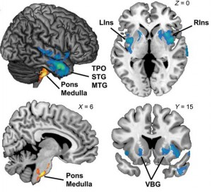 Neuroanatomical correlates of history of language development in ASC. Blue/Green areas were reduced in individuals with language delay, yellow/red areas were enlarged.