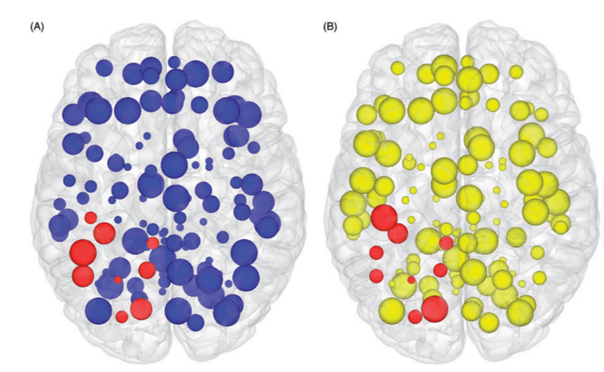 Brain mapping with network measures