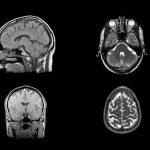 Understanding the neural mechanisms of Compulsive Sexual Behavior