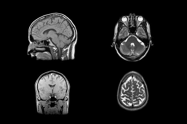 Understanding Brain Mechanisms Of >> Understanding The Neural Mechanisms Of Compulsive Sexual Behavior